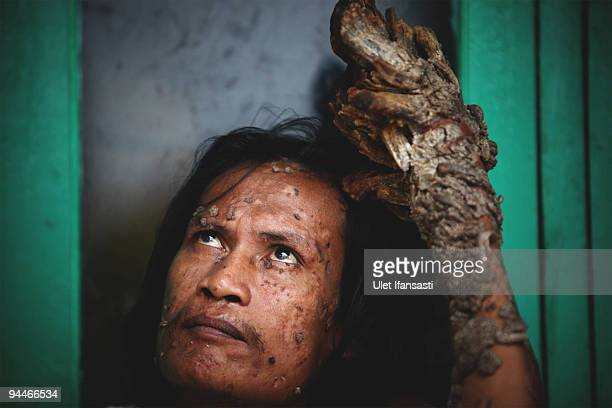 Indonesian man Dede Koswara pose for a photographer in his home village on December 15 2009 in Bandung Java Indonesia Due to a rare genetic problem...