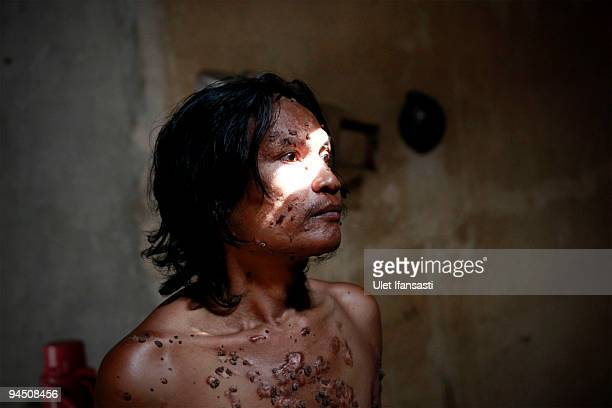 Indonesian man Dede Koswara prepare for shower in his home village on December 16 2009 in Bandung Java Indonesia Due to a rare genetic problem with...