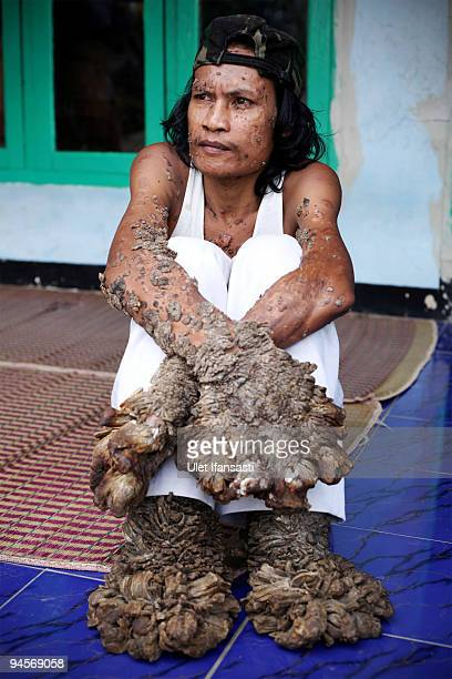 Indonesian man Dede Koswara sits in his home village on December 15 2009 in Bandung Java Indonesia Due to a rare genetic problem with Dede's immune...