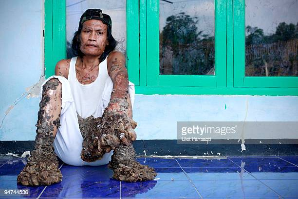 Indonesian man Dede Koswara sits outside his home on December 18 2009 in Bandung Java Indonesia Due to a rare genetic problem with Dede�s immune...