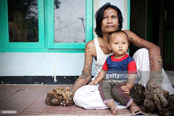 Indonesian man Dede Koswara sits with his cousin Andra in his home village on December 15 2009 in Bandung Java Indonesia Due to a rare genetic...