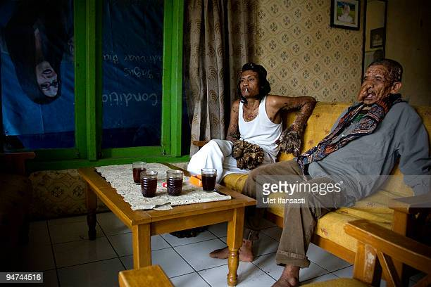 Indonesian man Dede Koswara sits with his friend Sakim in his home village on December 18 2009 in Bandung Java Indonesia Due to a rare genetic...