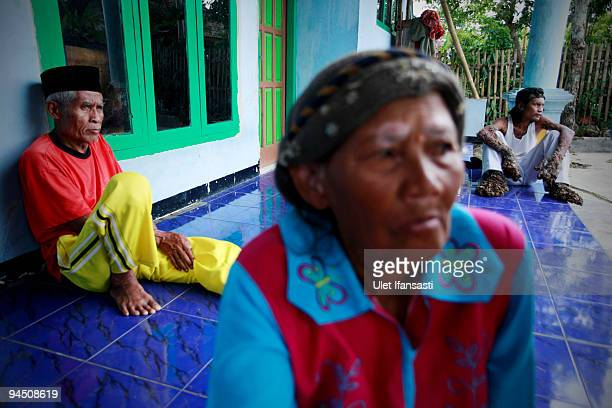 Indonesian man Dede Koswara sitting in front house with his parents in his home village on December 16 2009 in Bandung Java Indonesia Due to a rare...