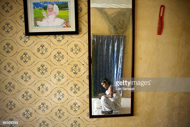 Indonesian man Dede Koswara sitting in his home village on December 16 2009 in Bandung Java Indonesia Due to a rare genetic problem with Dede�s...