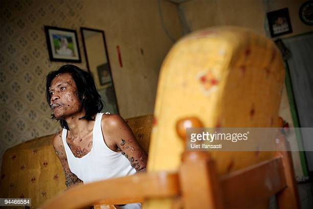 Indonesian man Dede Koswara smokes as he poses for a photographer in his home village on December 15 2009 in Bandung Java Indonesia Due to a rare...