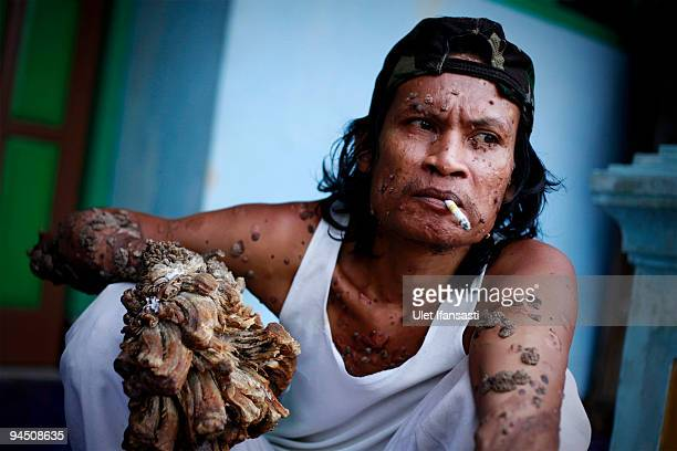 Indonesian man Dede Koswara smoking in his home village on December 16 2009 in Bandung Java Indonesia Due to a rare genetic problem with Dede�s...