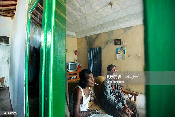 Indonesian man Dede Koswara talks with his friend Sakim in his home village on December 18 2009 in Bandung Java Indonesia Due to a rare genetic...