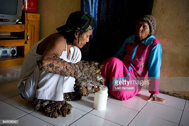 Indonesian man Dede Koswara treat illness with his mother named Engkar in his home village on December 16 2009 in Bandung Java Indonesia Due to a...