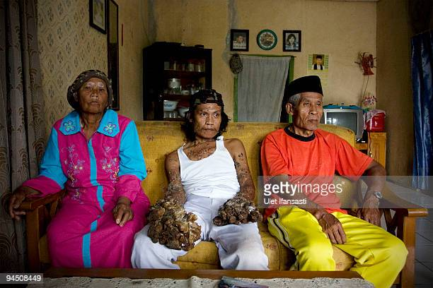 Indonesian man Dede Koswara with his parents is seen in his home village on December 16 2009 in Bandung Java Indonesia Due to a rare genetic problem...