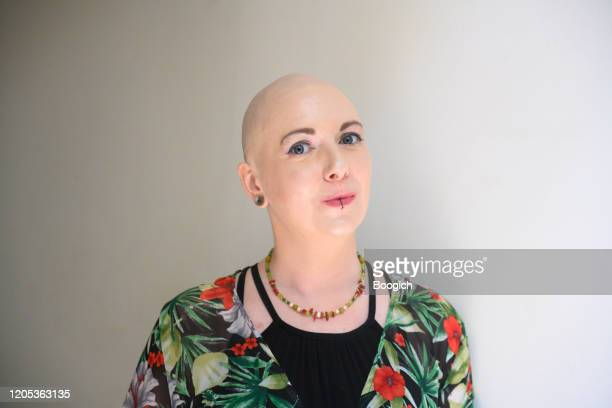 indoor portrait of smiling millennial woman with breast cancer in atlanta georgia usa - shaved stock pictures, royalty-free photos & images
