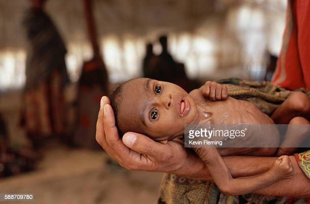 infant dying of starvation - malnutrition stock pictures, royalty-free photos & images