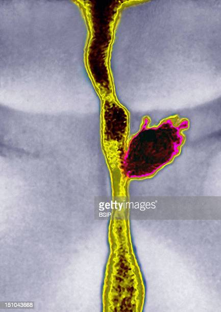 Infection Of An Hypertrophied Prostate Adenomitis With An Abscess Of The Left Lobe Visualized By Urography