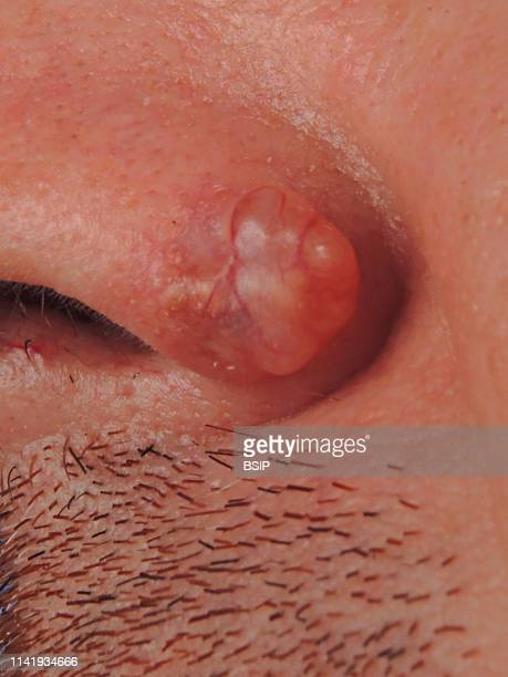 Infiltrating basal cell carcinoma on the nostril.