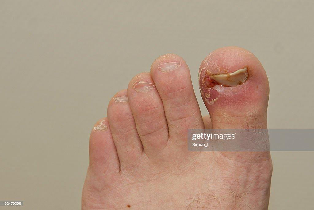 Нарывает большой палец на ноге