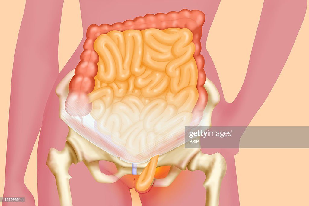 Inguinal Hernia Stock Photos And Pictures Getty Images
