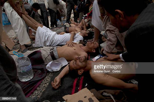 Injured antigovernment protesters receive first aid in Sanaa Yemen's president has declared a nationwide state of emergency after snipers killed at...