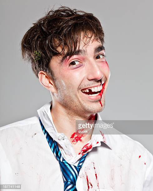 injured businessman - bad teeth stock photos and pictures
