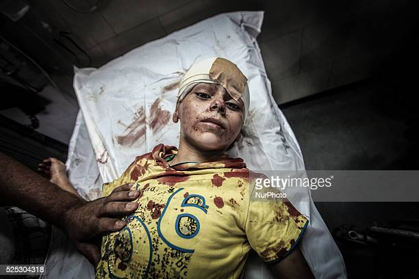 A injured child in At Shifa Hospital in Gaza on July 15 2014 The death toll from Israel's sevenday air campaign against Gaza rose to 186 exceeding...