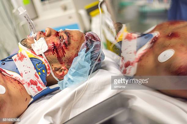 injured man - head injury stock photos and pictures