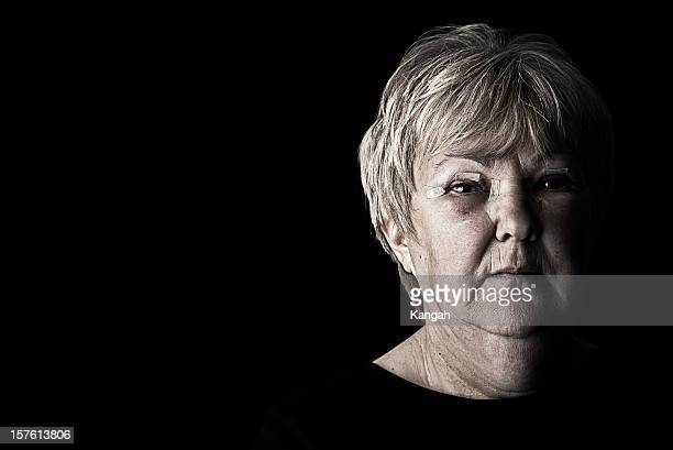 injured mature woman - abuse stock pictures, royalty-free photos & images