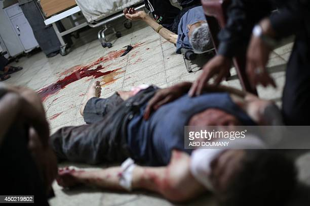 Injured people are treated at a medical center following shelling in the city of Douma northeast of the capital Damascus on June 7 2014 Syrian...