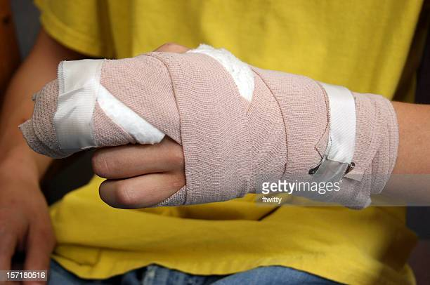 injured person shows off wrist cast - personal injury stock photos and pictures