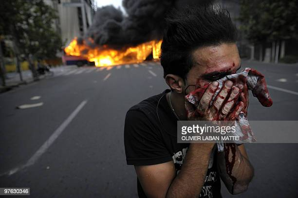 A injured supporter of defeated Iranian presidential candidate Mir Hossein Mousavi covers his face during riots in Tehran on June 13 2009 Hardline...