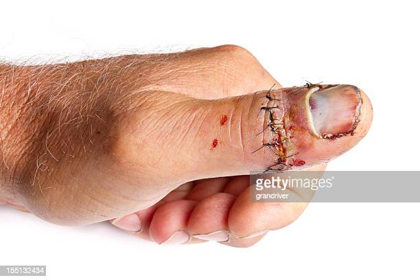injured thumb - wounded stock photos and pictures