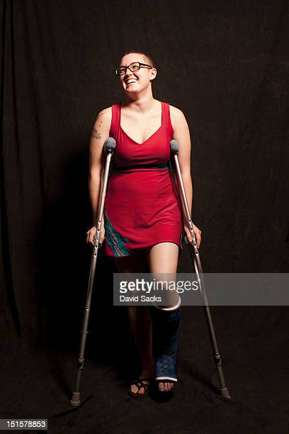 injured woman portrait - cast colors for broken bones stock pictures, royalty-free photos & images
