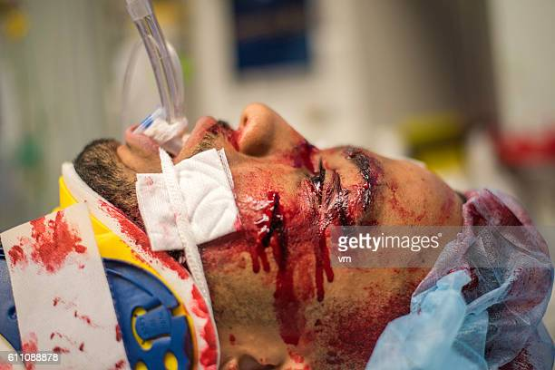 injured young man in er - patient on ventilator stock pictures, royalty-free photos & images