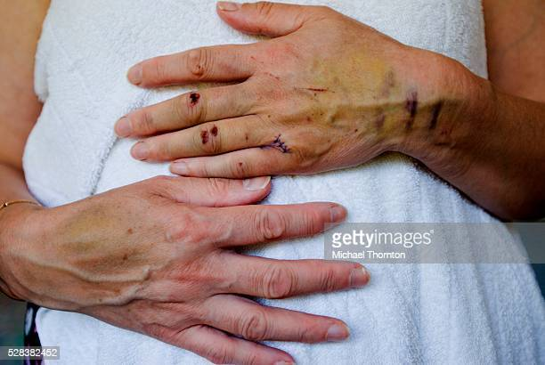 Injuries to a woman's hand and arm