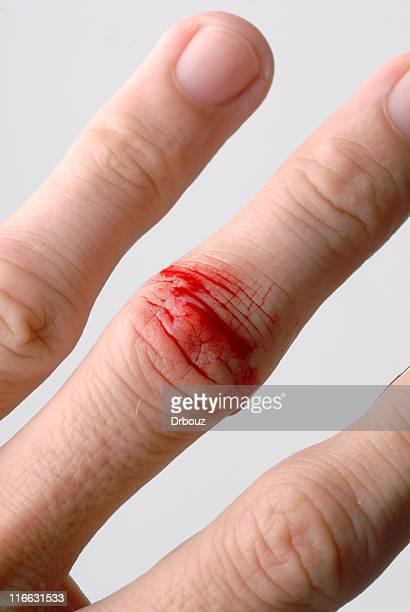 負傷 - finger injury ストックフォトと画像