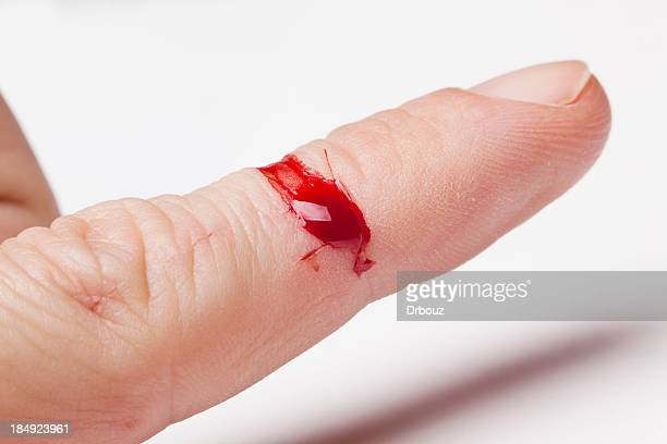 injury - wounded stock photos and pictures