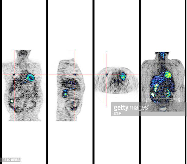 Institute Of Nuclear Medicine University Hospital Of Lille France Pet Scan Positron Emission Tomography Adenocarcinoma Right Side Of Colon Due To...