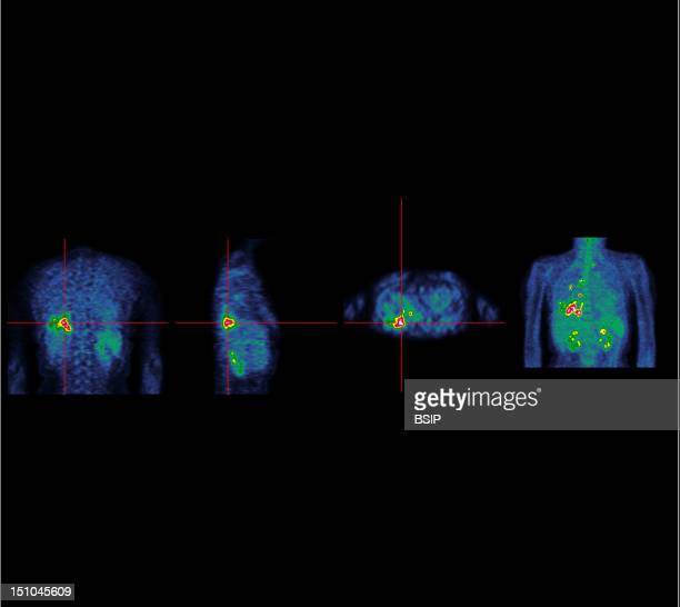 Institute Of Nuclear Medicine University Hospital Of Lille France Pet Scan Positron Emission Tomography Meningioma Upper Left Lobectomy Bronchial...