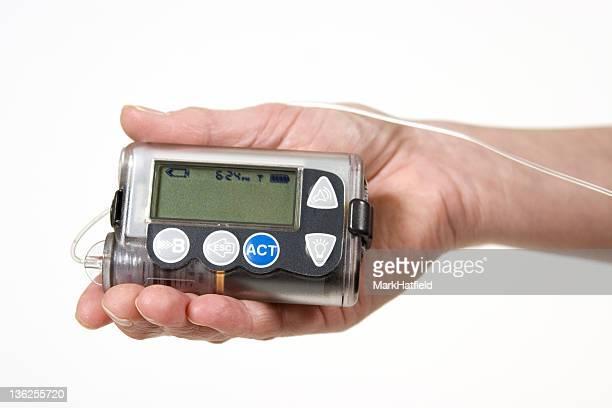 Bomba de insulina