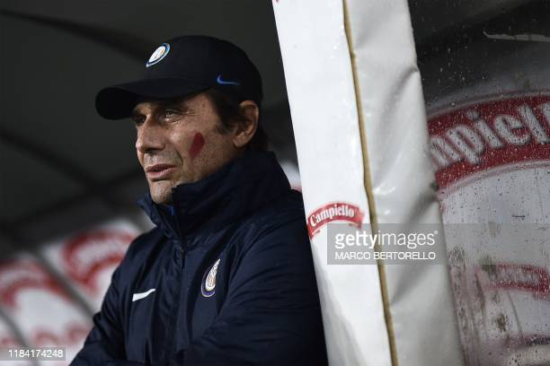 Inter Milan's Italian head coach Antonio Conte with a red streak on his cheek as part of an initiative targeting domestic violence against women...