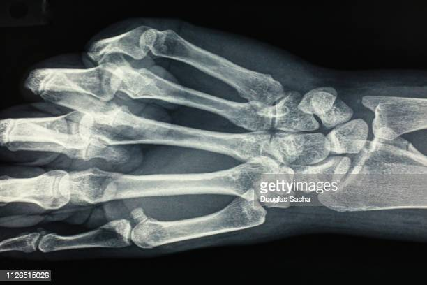 internal bones in a human hand - wrist stock pictures, royalty-free photos & images