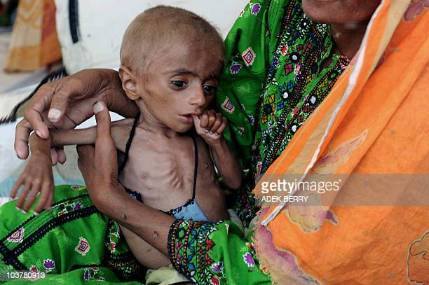 Internally displaced Pakistani woman Nurbano from Jacobabad cradles her malnourished one and half yearold infant Dostali at a temporary tent in...