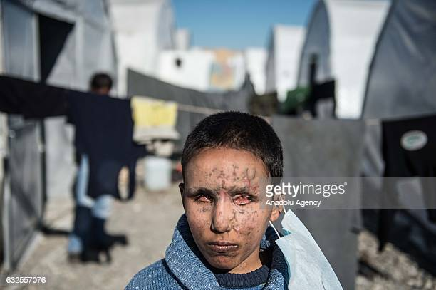 Internally displaced visuallyimpaired Syrian child Yeze Suphi is seen at a tent city built by Turkey near Jarabulus town in Aleppo Syria on January...