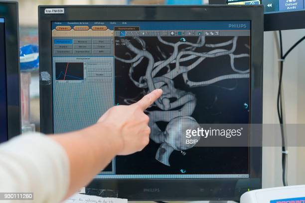 Interventional neuroradiology Pasteur 2 Hospital Nice France Treating a cerebral aneurysm through embolization an endovascular treatment introducing...