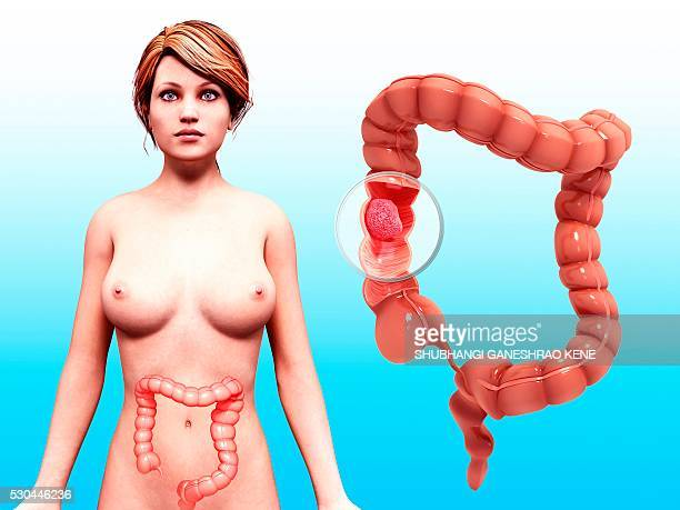 Intestinal cancer, computer artwork.