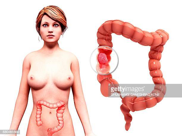 intestinal cancer, computer artwork. - human intestine stock photos and pictures