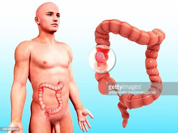 Intestinal cancer, computer artwork.