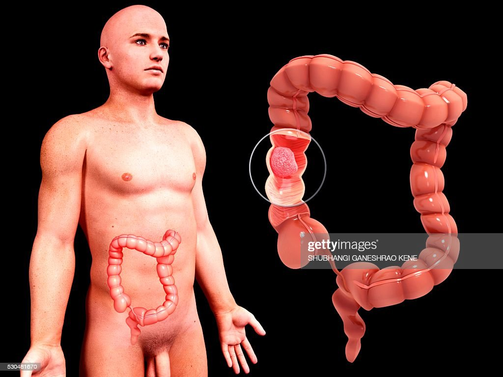 Intestinal cancer, computer artwork. : Stock Photo