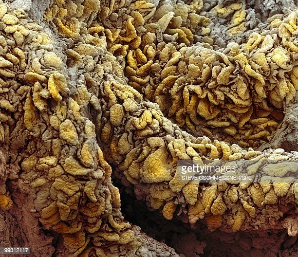 intestinal villi, sem - intestino humano fotografías e imágenes de stock