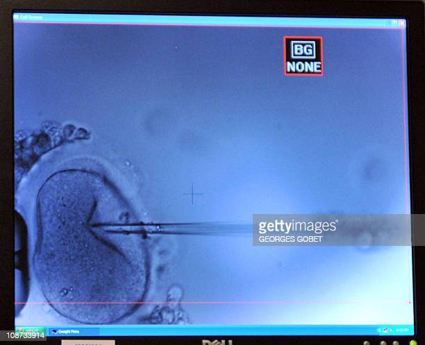 Intracytoploasmic injection of one human oocyte appears on a tv screen on February 22011 at the Erasmus Hospital in Brussels Belgium is an ideal...