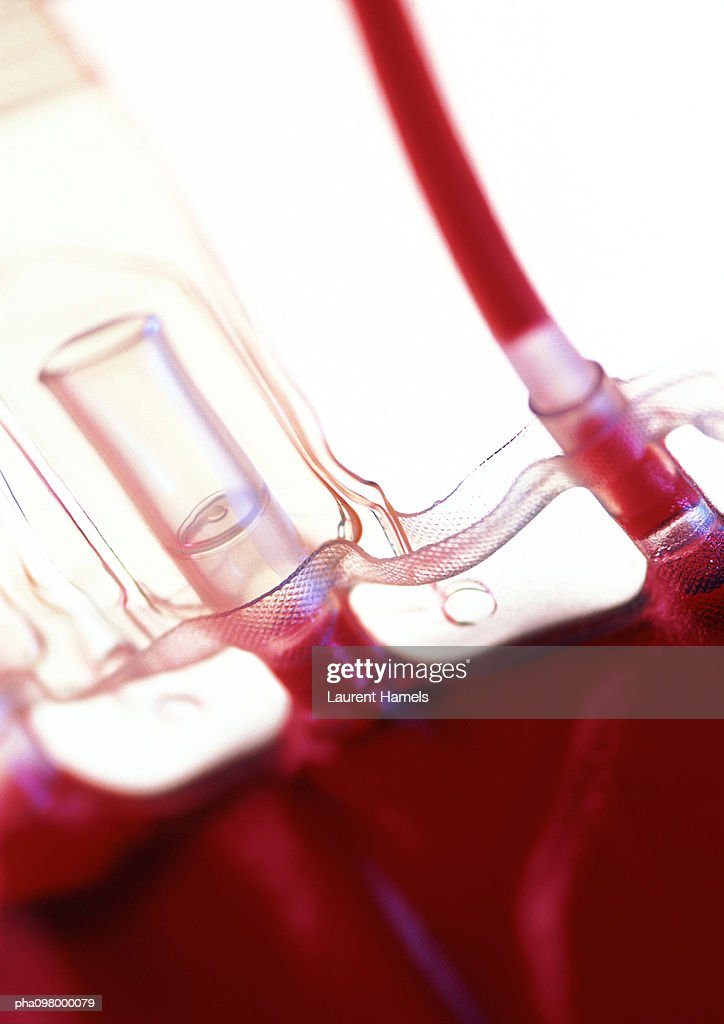 Intravenous bag with blood, close-up : Foto de stock