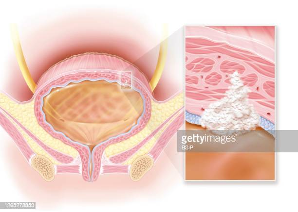 Invasive bladder cancer stage II muscle damage This illustration shows a woman's bladder with a stage II invasive cancerous tumor at the top right of...