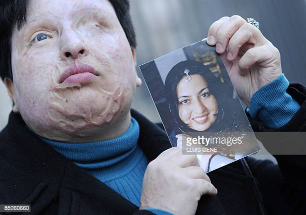 Iranian Ameneh Bahrami poses on March 5 2009 in Barcelona holding a photograph of herself before she was blinded by a man who threw acid in her face...